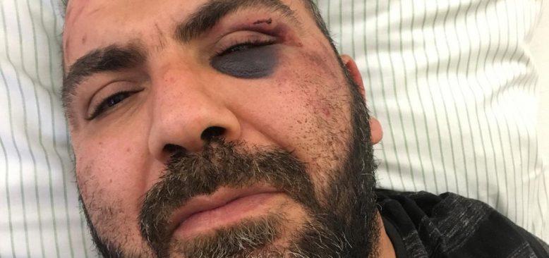 Almanya'da yaşayan Türk'e polis şiddeti iddiası