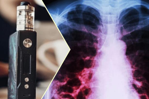 Elektronik sigara kaynaklı hastalıktan ölenlerin sayısı 37'ye yükseldi