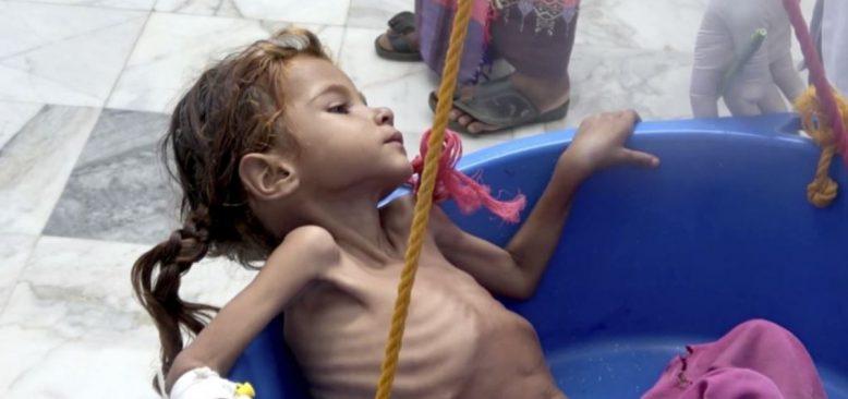 Yemen'de İnsani Yardımlar Bazı Bölgelerde Kısmen Askıya Alındı