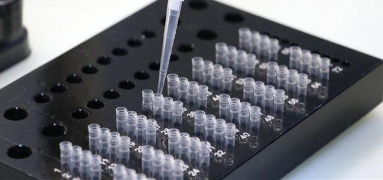 Türkiyenin yenilikçi PCR testi Antalya Diplomasi Forumu katılımcılarına yapılacak